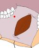 mucosa-orale-03