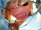 mucosa-orale-07