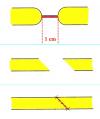 uretra-peniena-anastomosi-termino-terminale-01
