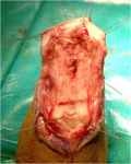 uretra-peniena-uretroplastica-in-due-tempi-con-mucosa-orale-01