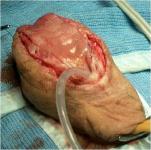 uretra-peniena-uretroplastica-in-due-tempi-con-mucosa-orale-04