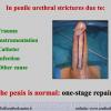 Diapositiva040