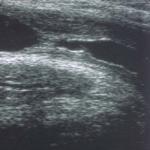 ecografia_uretrale_patologica