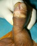eziologia-4A